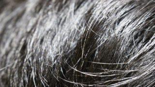 抜毛症で悩んでるけど質問ある?